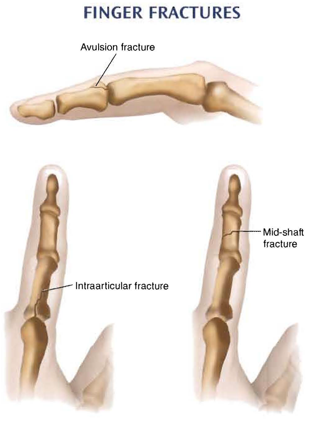 finger injury sprain How long does it take for a sprained hand to heal update cancel promoted by hims it depends on the severity of the sprain (injury to ligaments and tendons) how long does it take for a sprained ankle to heal.